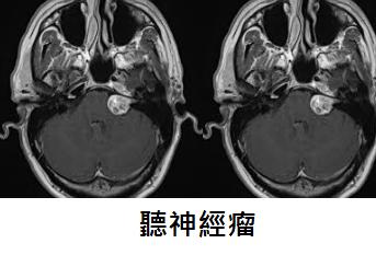耳鳴, 暈眩,聴力減弱可由聽神經瘤( Acoustic Neuroma)引起!!