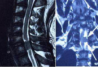 頸椎管腫瘤容易誤判坐骨神經痛   排便困難竟為先兆 @軟骨減壓脊醫中心